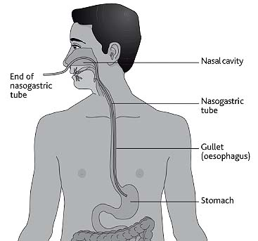 The Difficult Route to the Stomach
